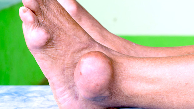 gout in ankle