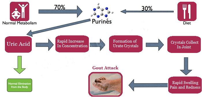 gout pain heating pad diet for gout patients in india uric acid level in blood wikipedia