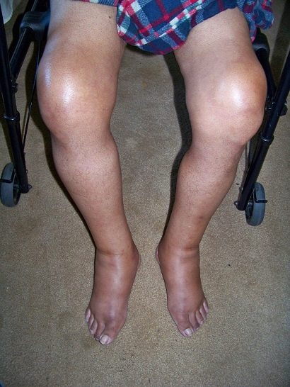 gouty knees