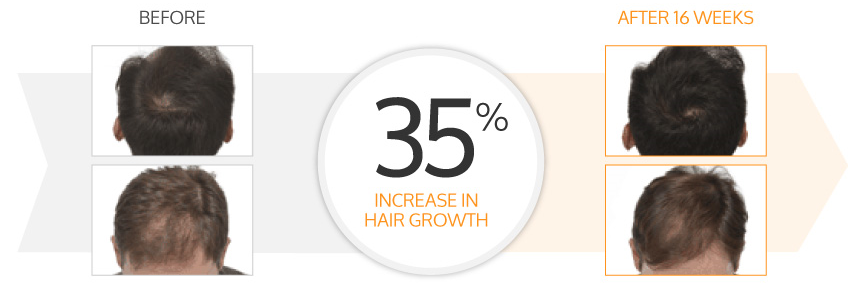 35% increase in hair growth
