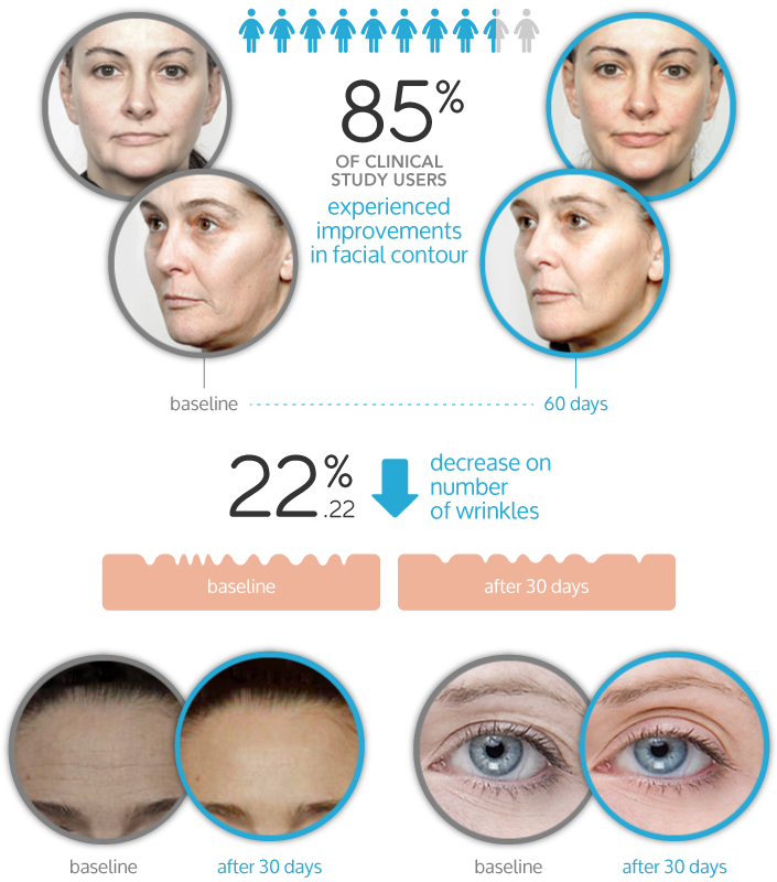 nuFace Infographics of Before and After