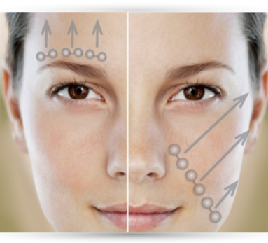the 5-Minute Facelift