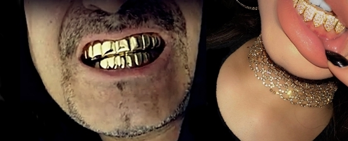 ALL-GRILLZ